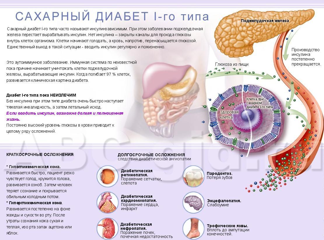 похудеть на чесночной настойке